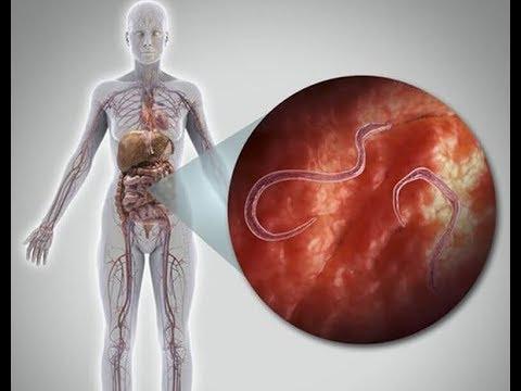 a paraziták behatolása a testbe a főzés megöli- e a parazitákat