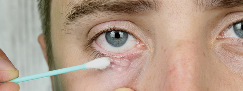 Általános bőrgyógyászat