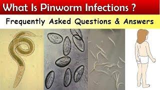 A paraziták kezelése édes Gombaféreg-pinworm kezelés felnőtteknél