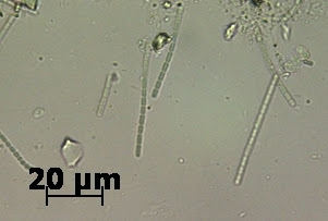 Pinworms kezelése: tünetek és gyógyszerek Krónikus pinworms
