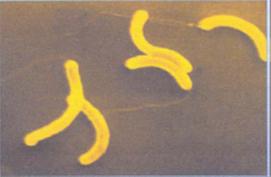 saprotrofák paraziták Vibrio cholerae parazita második évad