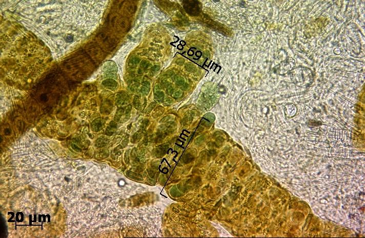 Krónikus pinworms. Pinworms kezelése: tünetek és gyógyszerek - Szövődmények March