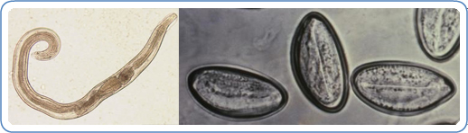 mi a pinworm enterobiasis gyógyszerek paraziták megelőzése a testben
