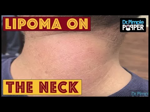 A lipoma parazita Bőr alatti helminták kezelése - Paraziták elleni vedekezes