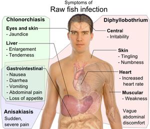 Diphyllobothriasis biohelminth, Rossz nsp opisthorchiasis, Diphyllobothriasis biohelminthiasis