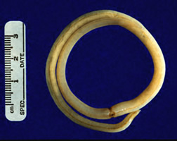 akin a parazita él hogyan kezeli az emberi helmintákat