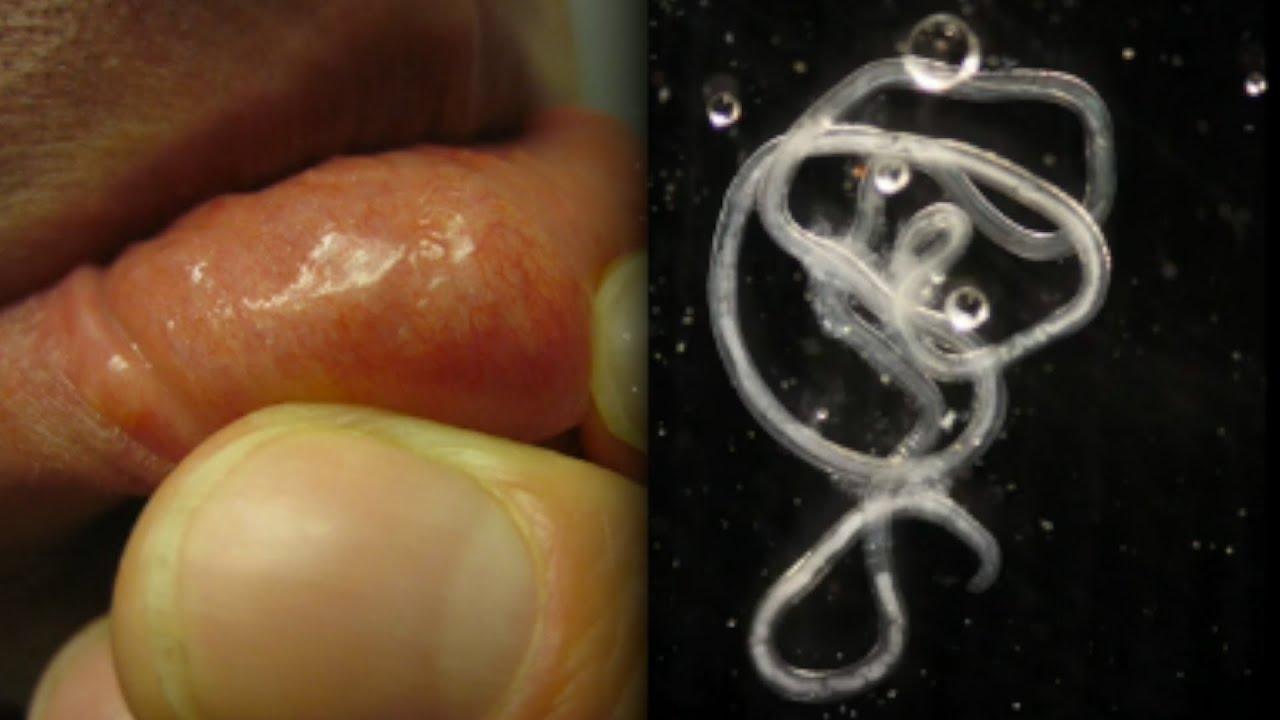 emberi paraziták képei reggel székletszag a szájból