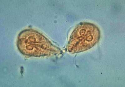 Giardia Ascaridosis malária - rgmania.hu