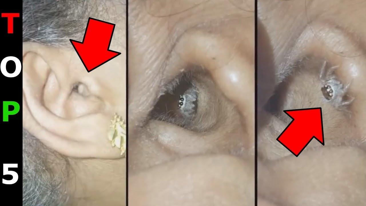 mi a bél lélegzete pinworms krónikus