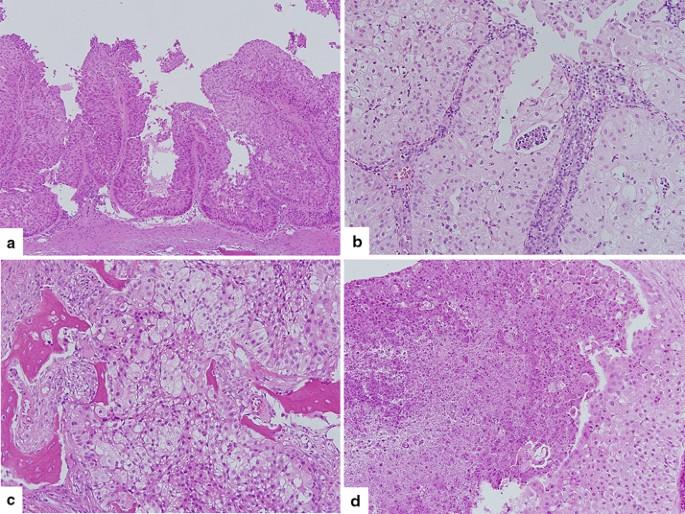 szarvasmarha galandféreg kezelés bélparaziták emberi