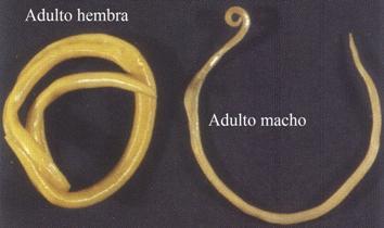 spicula in ascaris diphyllobothriasis szürkés
