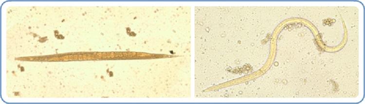 Strongyloidiasis teniasis