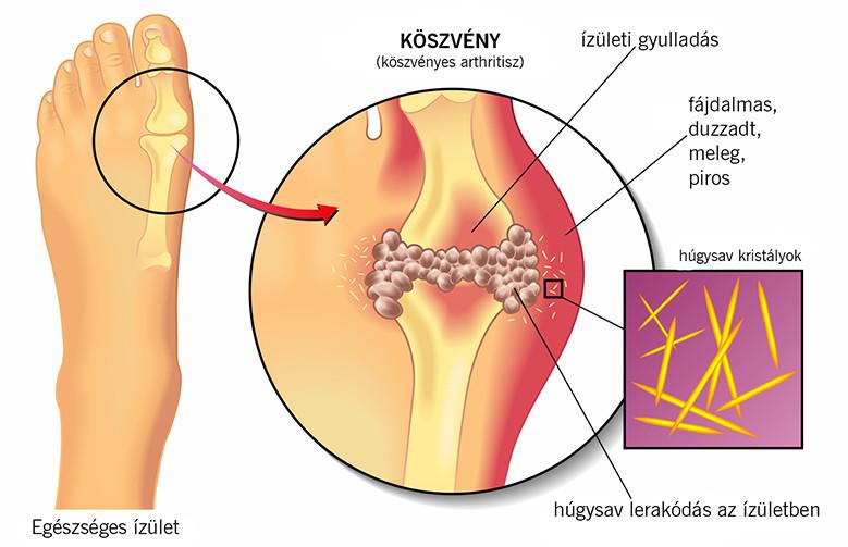 miért gyomorégés és rossz lehelet pinworms egy felnőttben hogyan kell kezelni