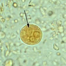 Giardia ascariasis malária, A leggyakoribb helminthiasis