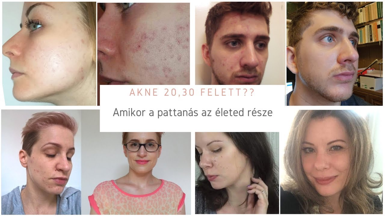 Bőratka, demodex