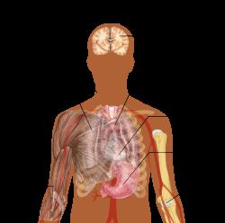 a paraziták tüdőgyulladást okozhatnak