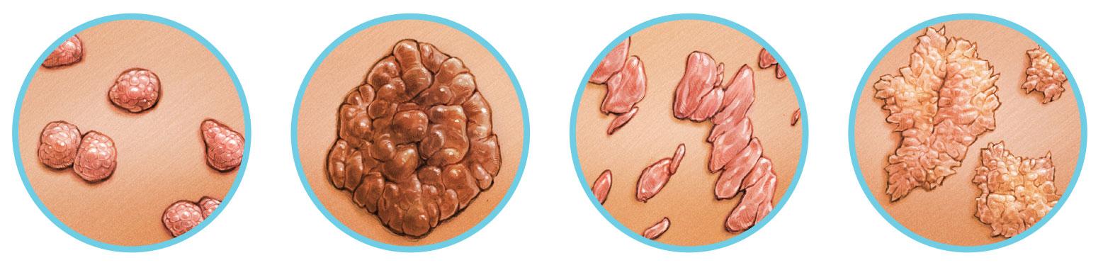 Gömbférgek és pinwormok a székletben - A rossz lehelet és annak megszüntetése