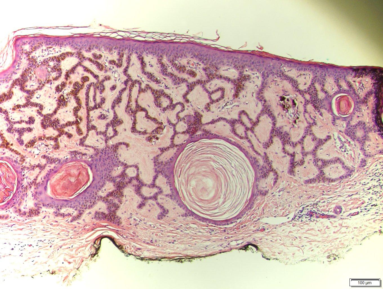 a seborrhea parazita specifikus szagok a szájból