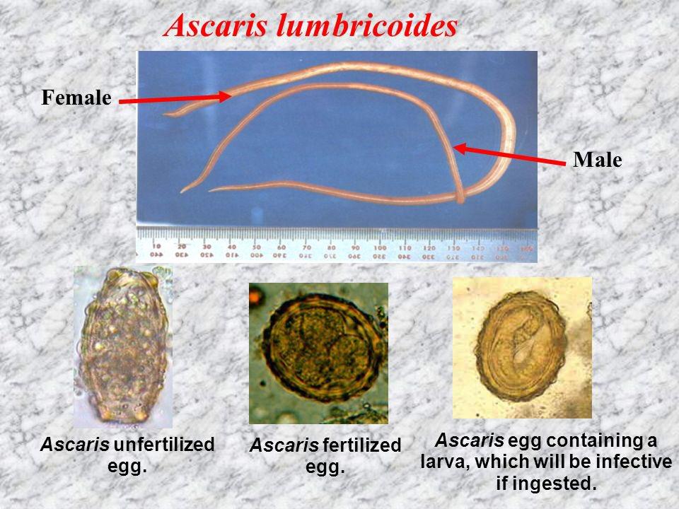 Ascaris lumbricoides - Ascaris lumbricoides - rgmania.hu