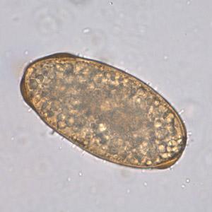 Az Ascaris parazita pinworms hogyan lehet megszabadulni tőlük