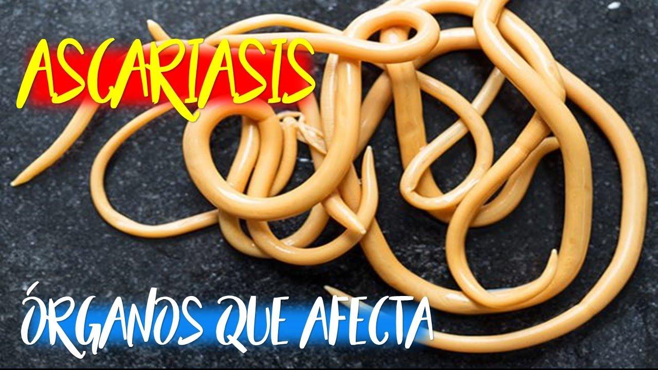 Az Ascaris típus lyudska
