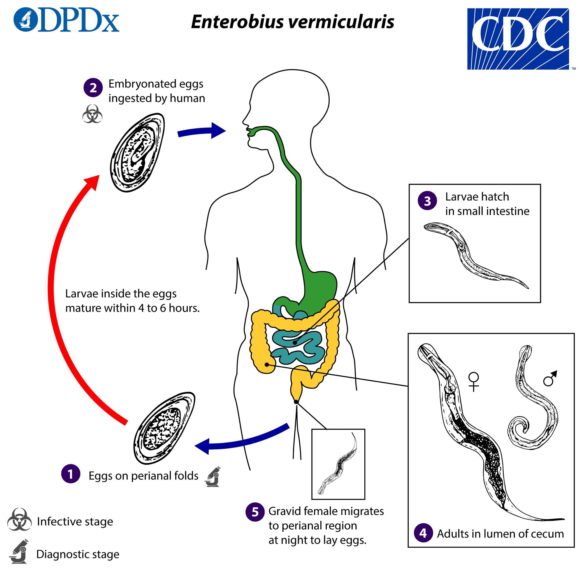 az enterobiasis pinworms