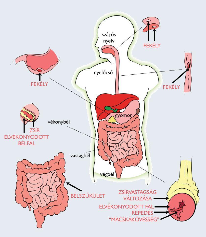 milyen gyógyszerekkel távolítsa el a parazitákat az emberi testből