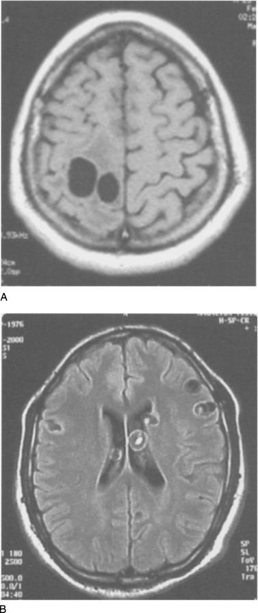 MRI diphyllobothriasis. Szájszárazság