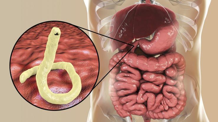 tünetek, ha egy személynek szarvasmarha- galandférge van hogyan kell kezelni a viszketést a pinwormokkal