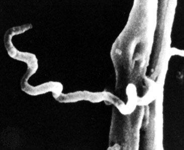 ostorféreg fertőzés útja, ha pinworms hogyan lehet eltávolítani