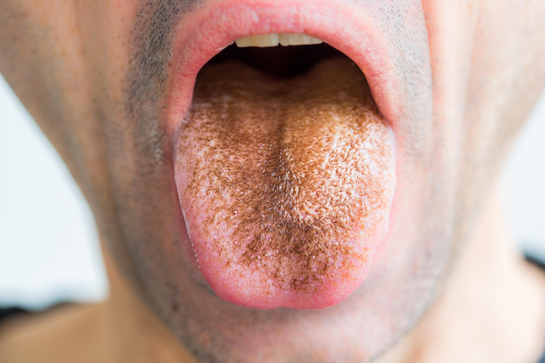undorító lehelet miből mi a szarvasmarha- galandféreg fertőzés forrása