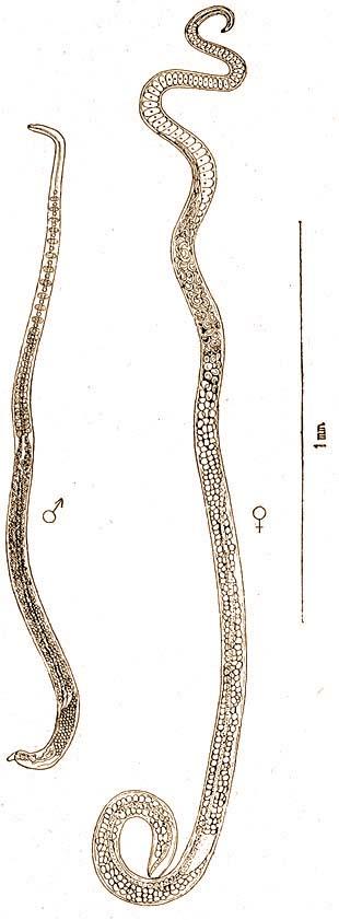 pinworms mi ez, hogyan kell kezelni bélparaziták emberben