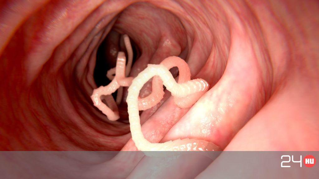 Mit tud enni egy felnőtt giardiasis esetén