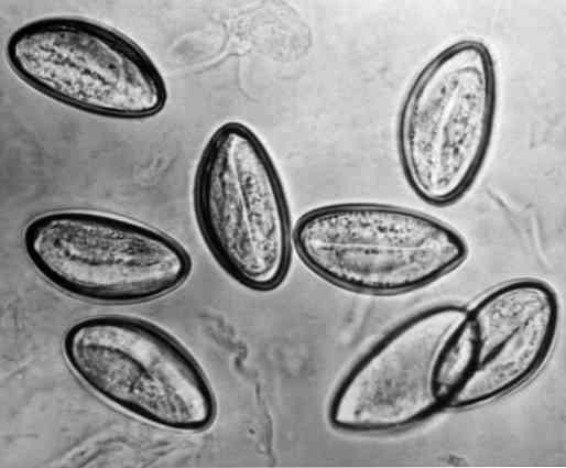 paraziták, hogyan lehet tesztelni