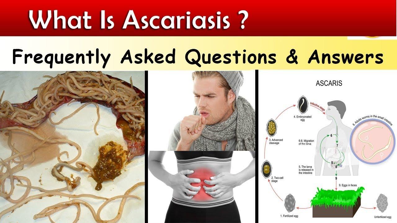 Ascaris milyen féreg paraziták által okozott bőrbetegségek