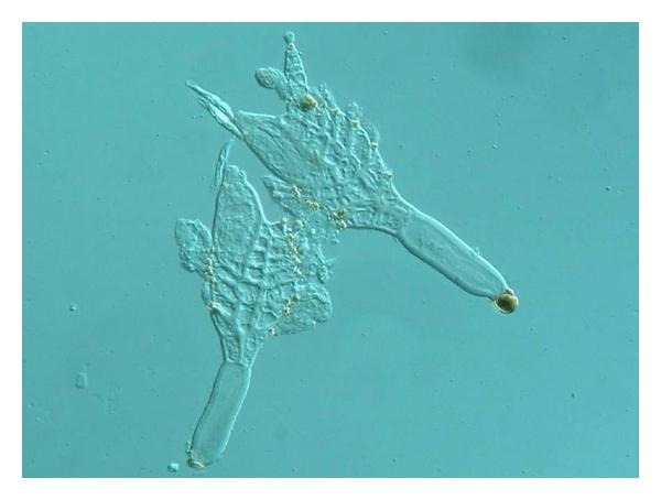 milyen kábítószert használnak a pinwormok ellen paraziták a nyelőcsőben és a gyomorban