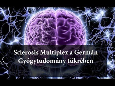 paraziták és sclerosis multiplex